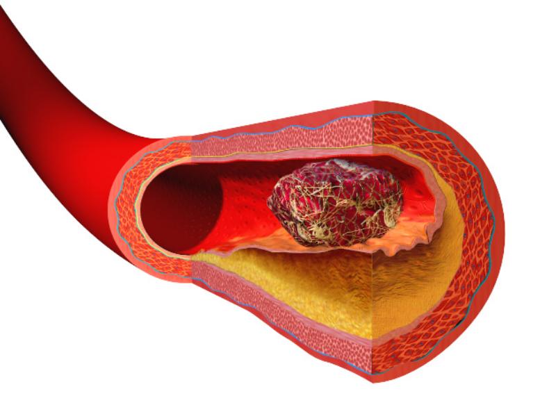 Отрыв тромба: симптомы, первая помощь и причины, почему оторвался тромб и человек умирает