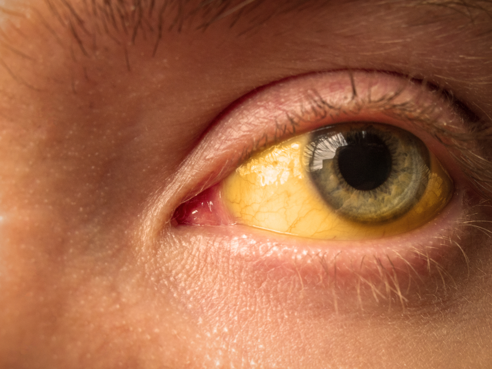 Красные белки глаз – что делать?
