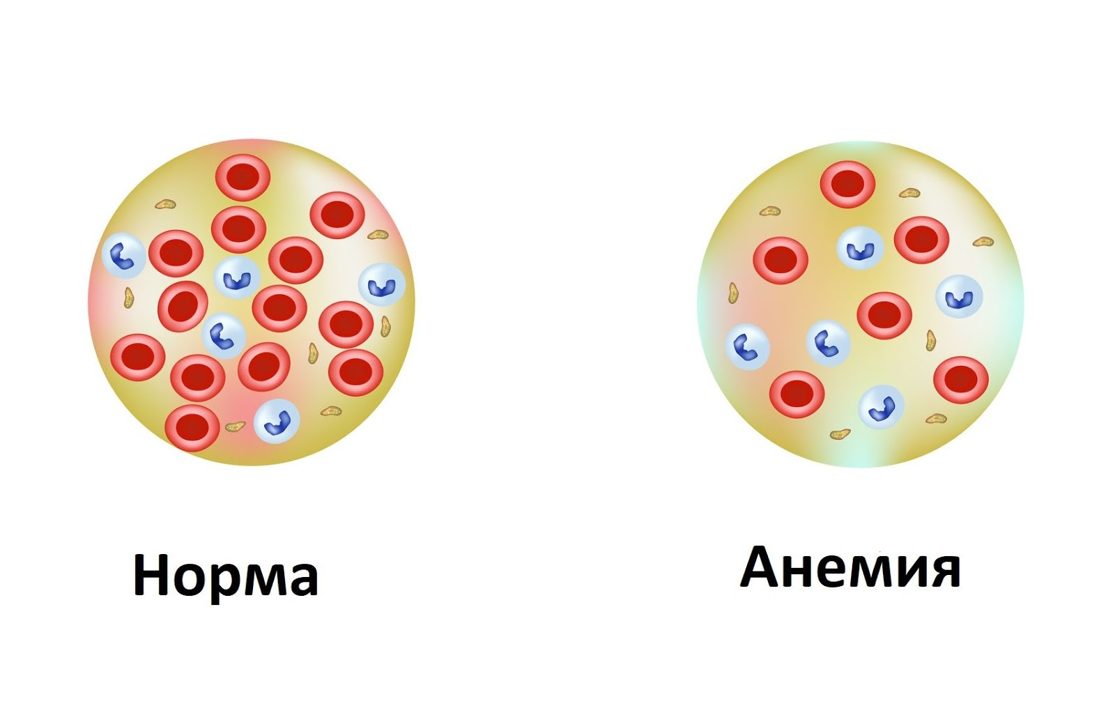 Что такое гемоглобин. Норма, повышенный и низкий гемоглобин