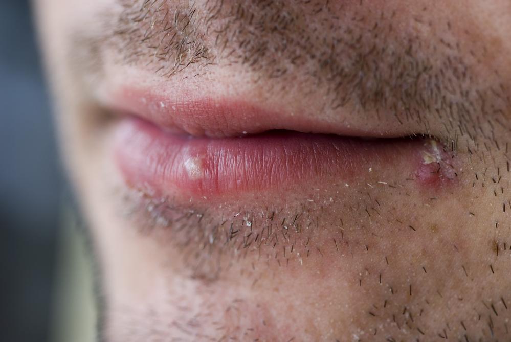 Почему не проходят заеды на губах