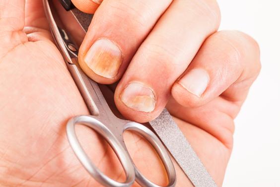 Заговоры от грибка ногтей рук