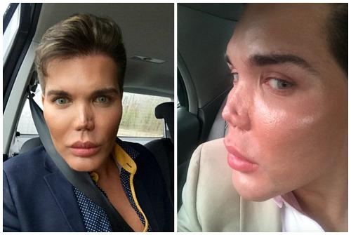 Дыра вместо носа: 48-летняя британка показала, как выглядит ее ...   335x500