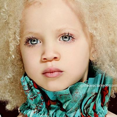 Фото 8-летняя девочка-альбинос Ава Кларк— новая звезда мира моды!