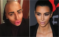 Вокруг света: Фанат Ким Кардашьян потратил $157 000 на операции, чтобы стать похожим на своего кумира