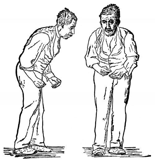 Фото Новый подход клечению болезни Паркинсона опробован намышах