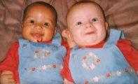 Вокруг света: Эти сестры-близнецы родились совершенно разными. И вот как они выглядят сегодня...