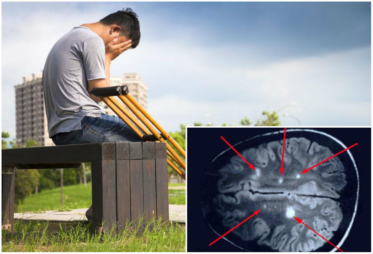Болезнь молодых. Как распознать первые признаки рассеянного склероза