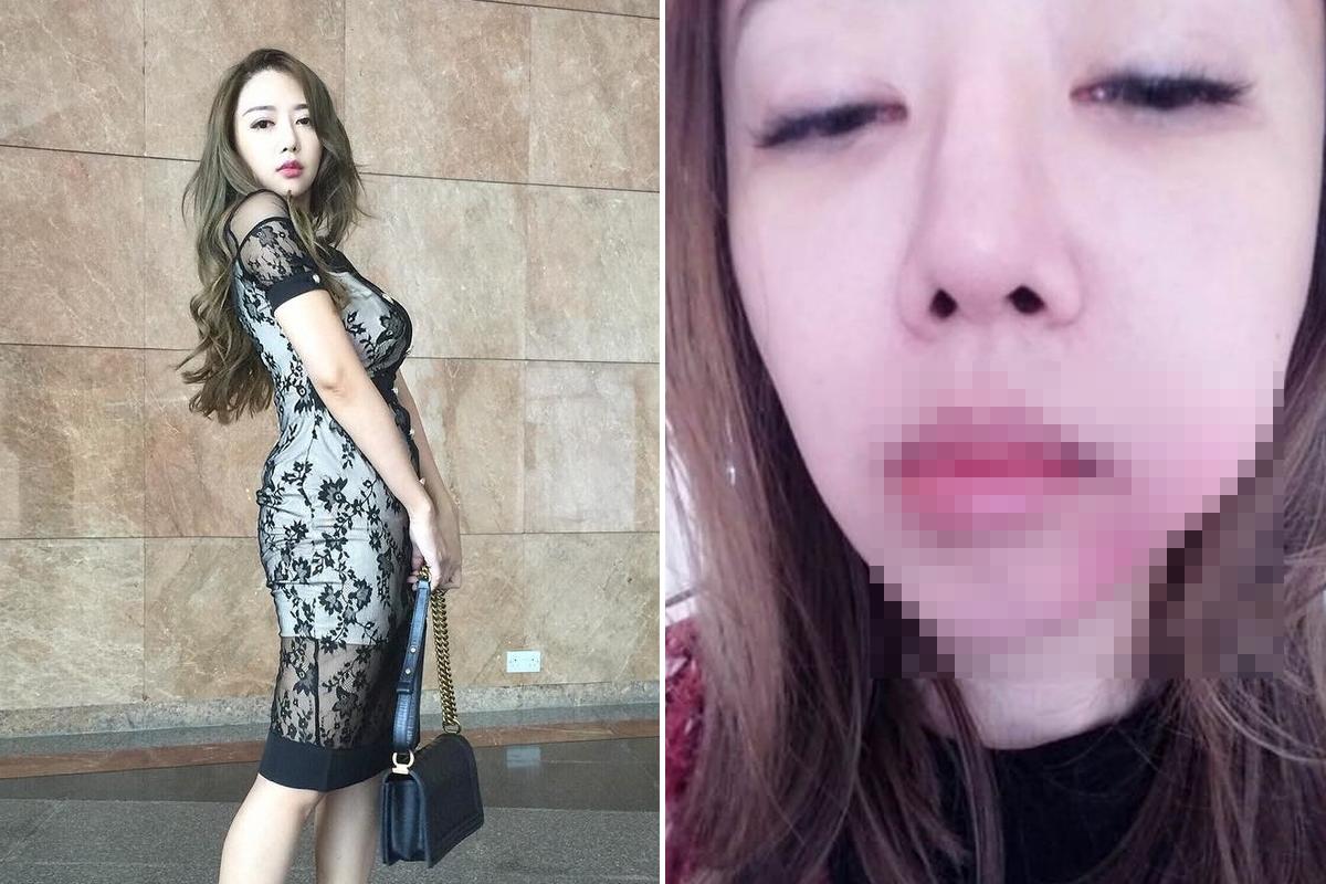 """Жених избил участницу """"Мисс Азия"""" за то, что она пыталась занять для них денег"""