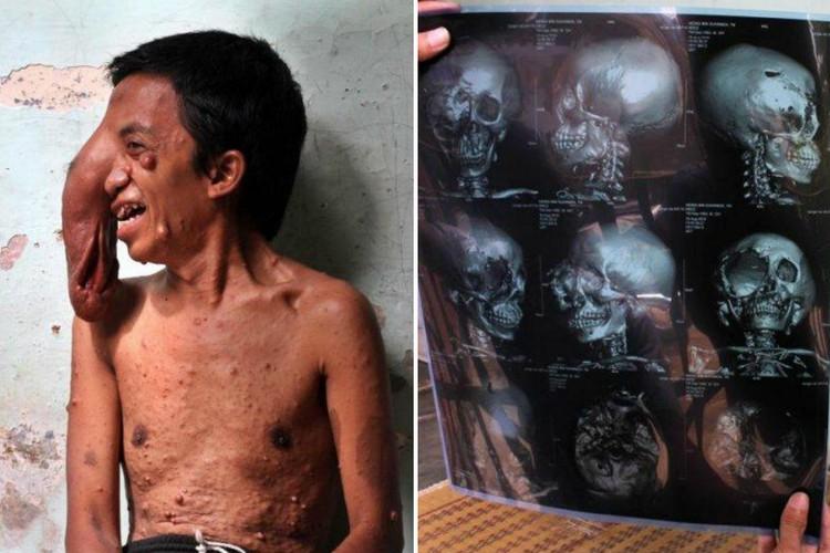 Фото Из-за огромной опухоли на глазу мужчина превратился в изгоя