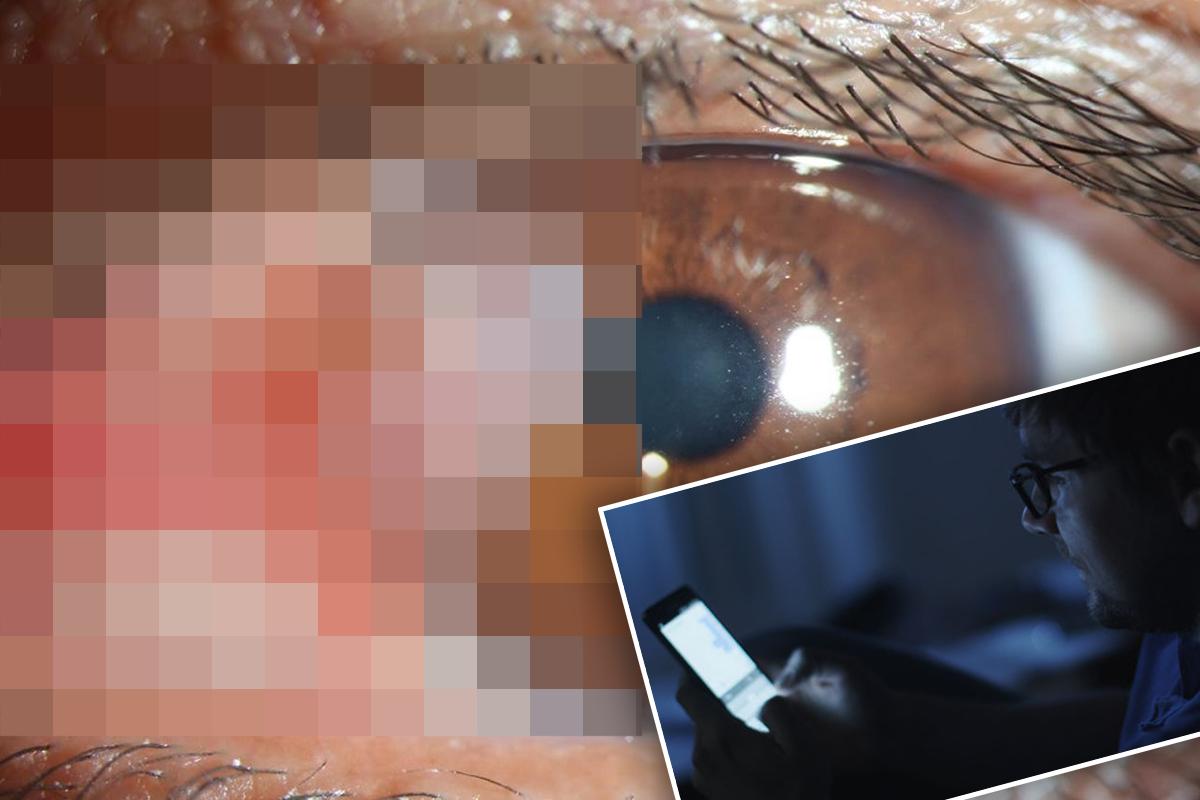 Мужчина умер от рака глаза из-за того, что вы делаете каждую ночь