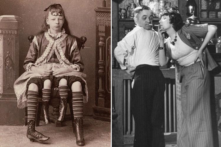 Фото Опухоль с лицом и человек-сова. Самые странные люди XX века