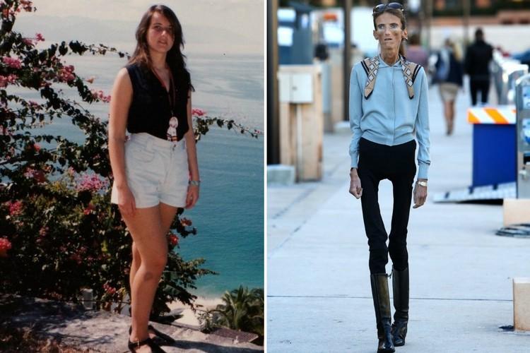 Фото Трагичная история жизни самой худой женщины на планете Валерии Левитиной