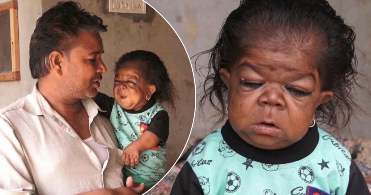Фото Вечный младенец: 23-летний индиец застрял в теле ребенка