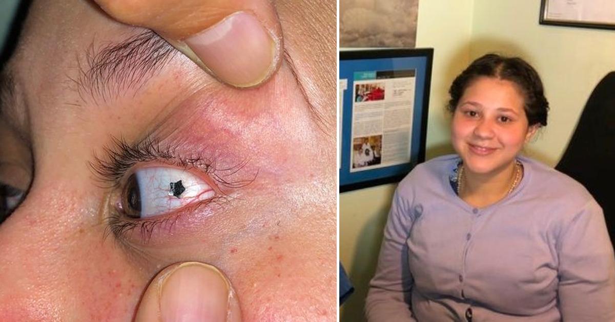 Фото Ослепительная мода: девушки имплантируют украшения прямо в глаза