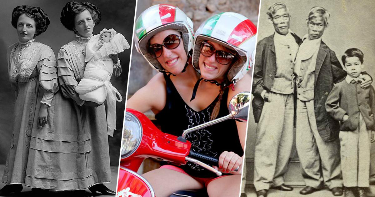 Жизнь на двоих: счастливые истории сиамских близнецов