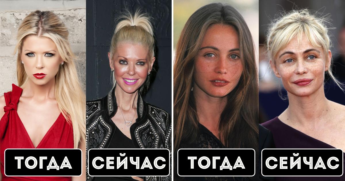 Фото Гадкий утенок: знаменитости, изуродовавшие внешность пластикой