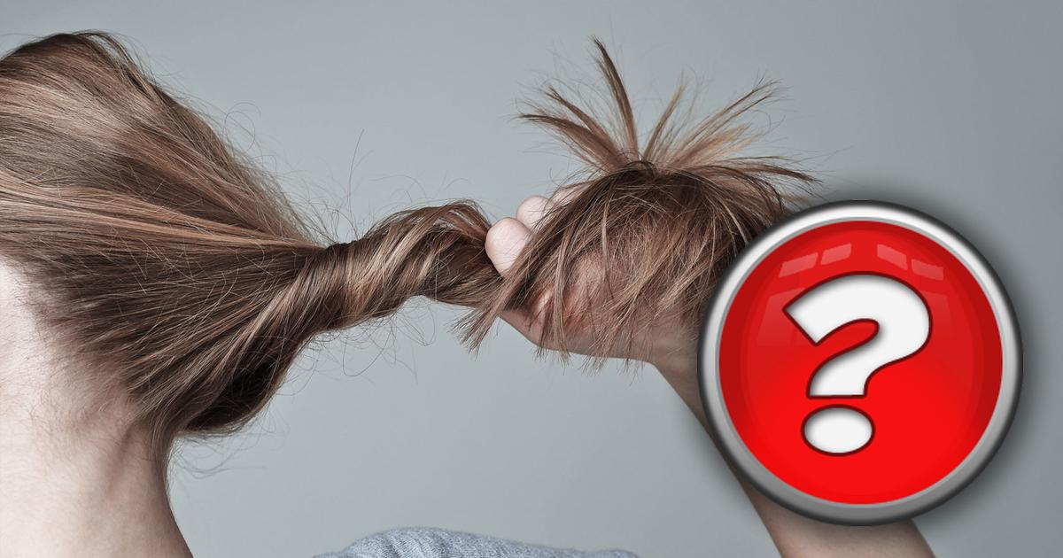 """""""Не могу остановиться"""": чем болеют люди, вырывающие волосы на своей голове"""