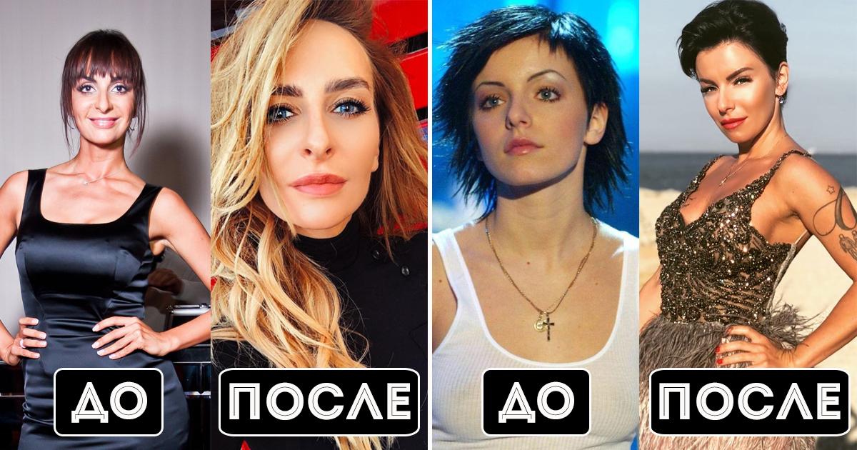 Фото Другие люди: как выглядели российские звезды до пластики