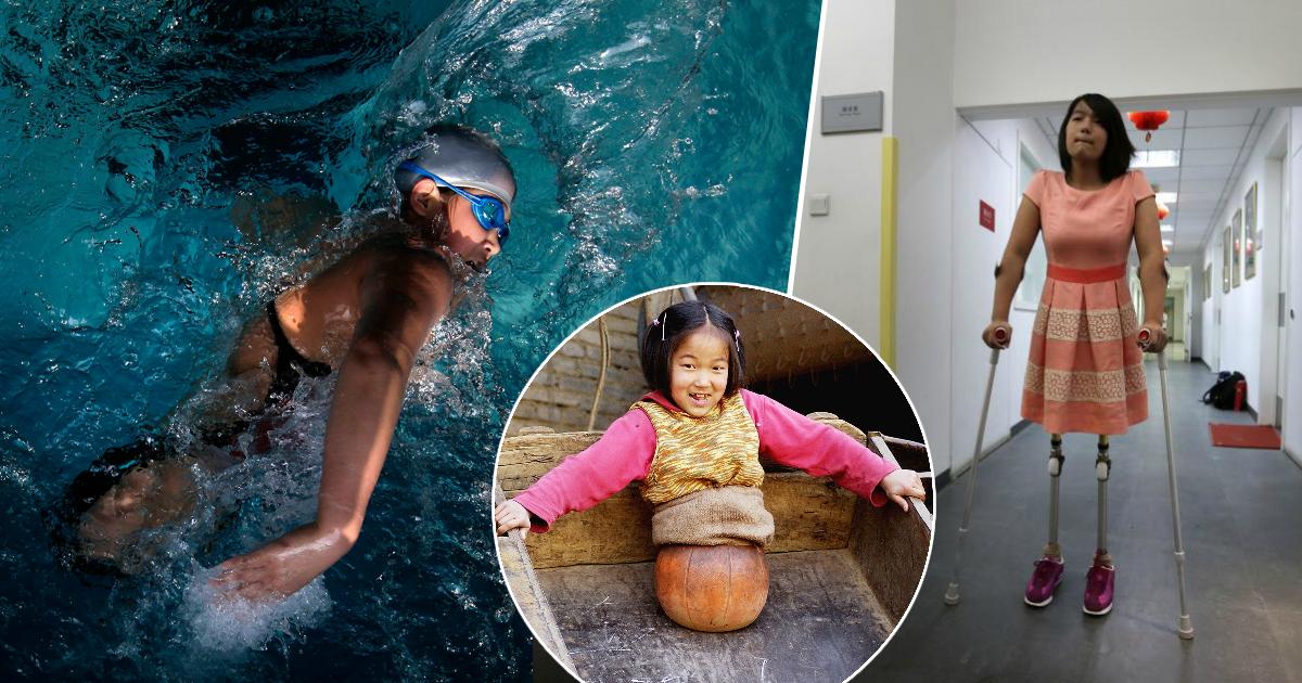 Фото Жажда жизни: как девочка с баскетбольным мячом вместо ног стала известной спортсменкой
