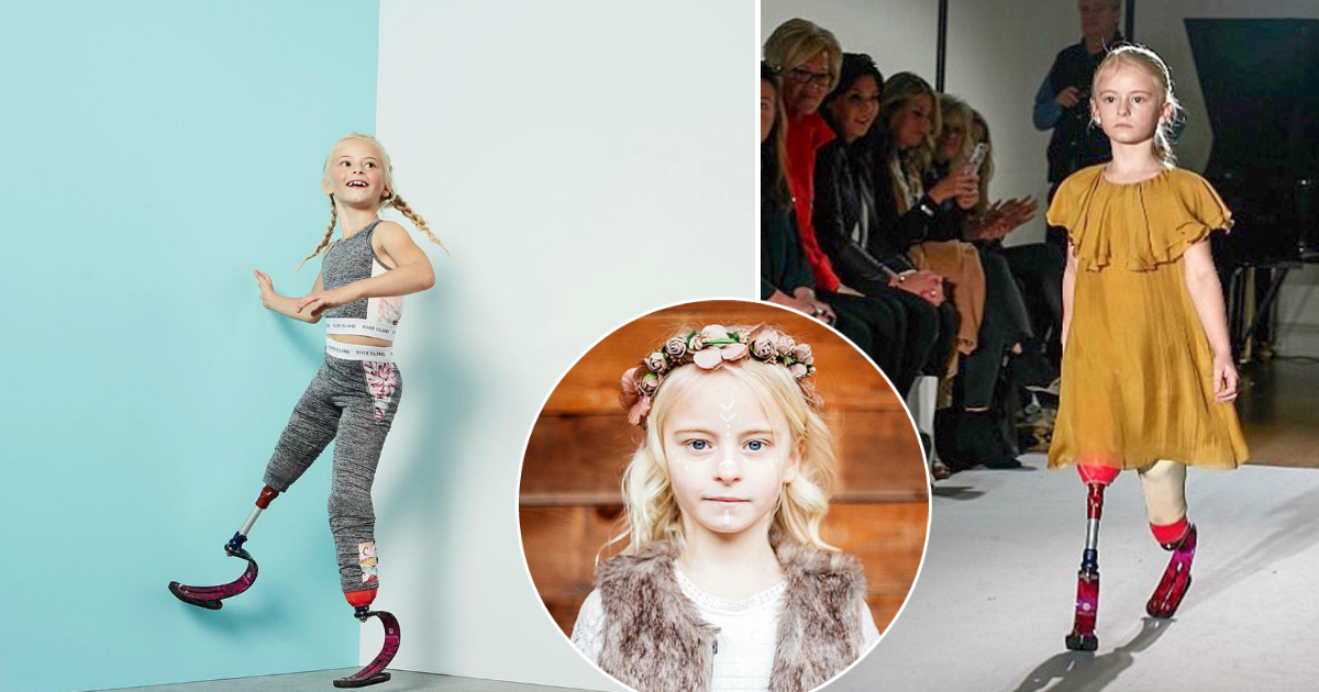 Фото Сильная духом: как 7-летняя девочка с ампутированными ногами стала успешной моделью