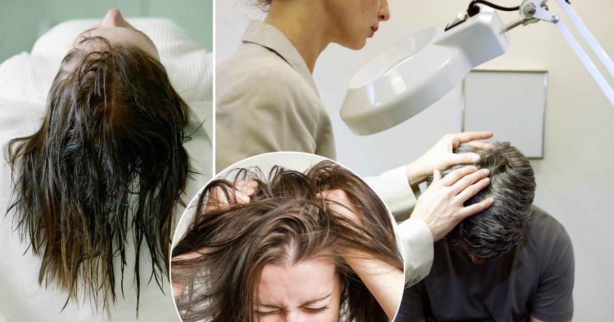 Фото Зуд и перхоть: почему нельзя отправляться спать с мокрыми волосами
