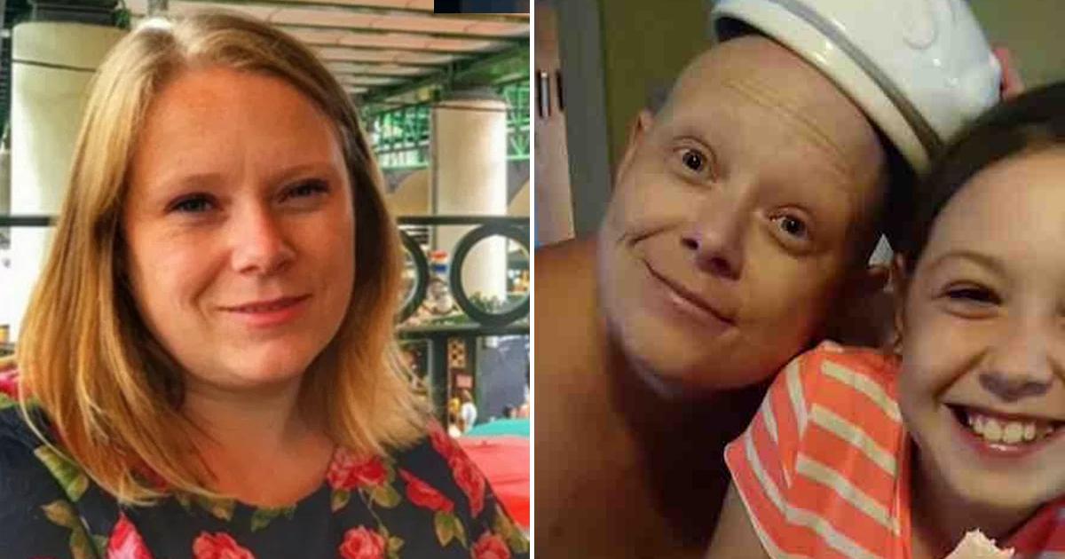 Фото Пациентка жаловалась на зуд в ногах, но оказалось, что это агрессивная форма рака