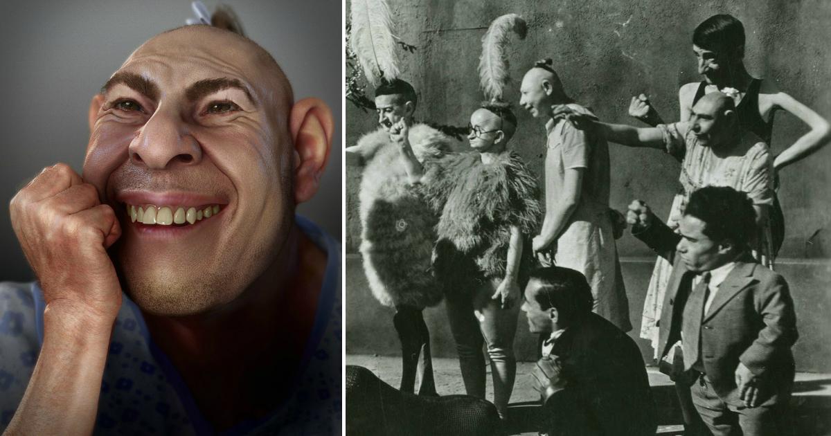 Фото Шлитци Сёртис: как сложилась судьба самого известного уродца XX века