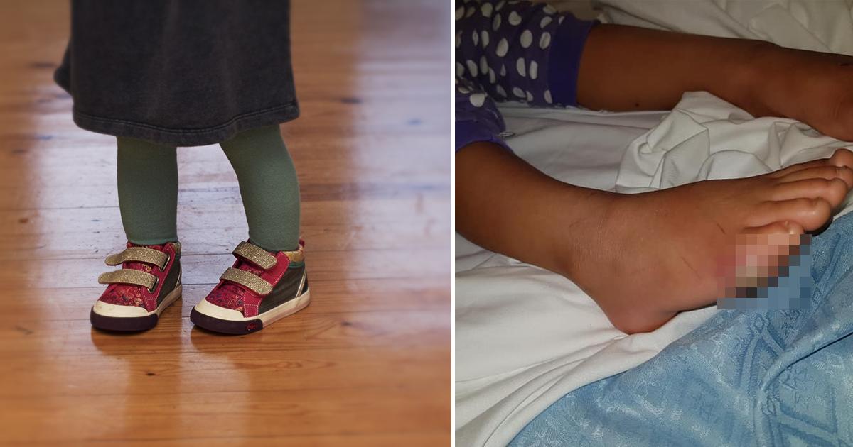 Фото Четырехлетний ребенок получил заражение крови после примерки обуви в магазине