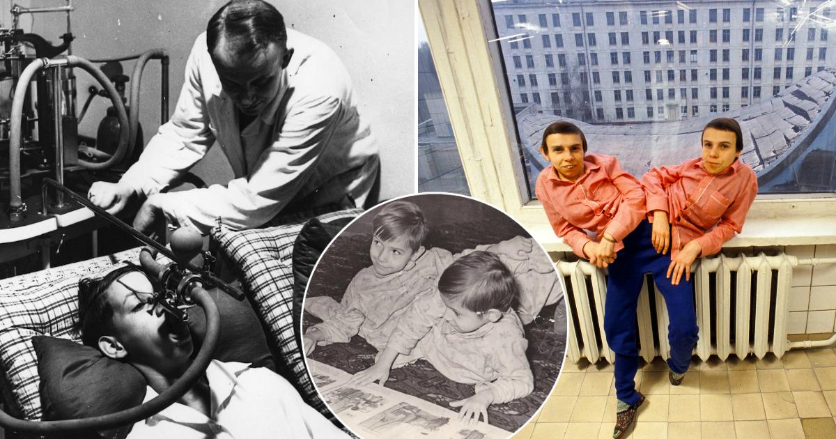 Эмпат и психопатка: жестокие эксперименты СССР над сиамскими близнецами Дашей и Машей