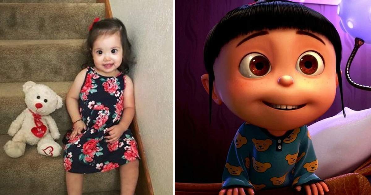 Редкое заболевание сделало девочку похожей на сказочного персонажа