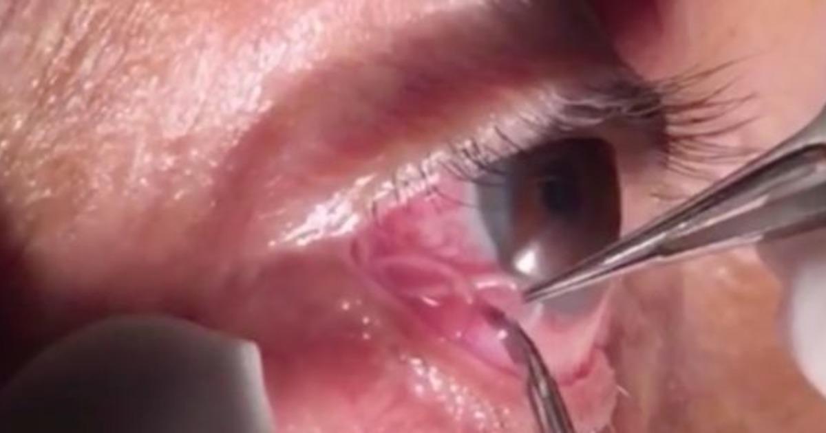 Фото Незваный гость. В глазу индийца обнаружили 15-сантиметрового червя
