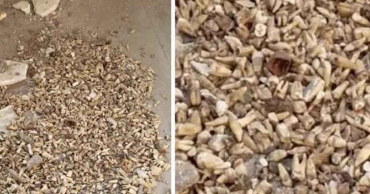 Фото 1000 человеческих зубов было найдено в стене дома