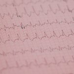 Voices: My Heart Was Fixed, but My Mind Was Damaged