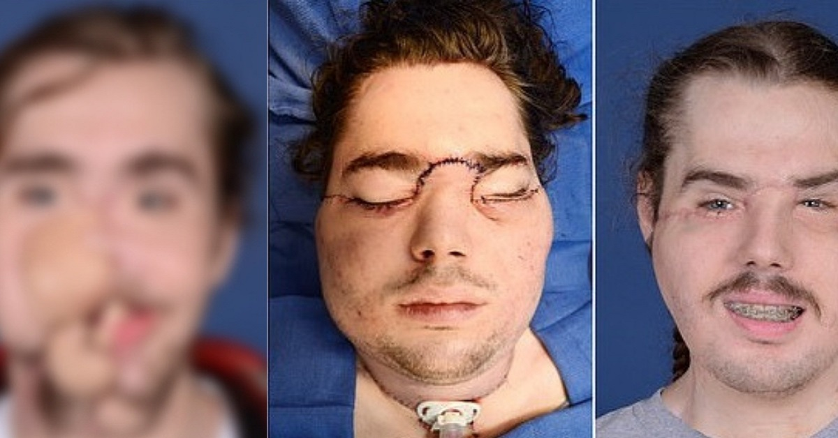 Facial transplant surgery #8