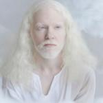 Фото Волшебная красота людей-альбиносов в фотопроекте израильского фотографа