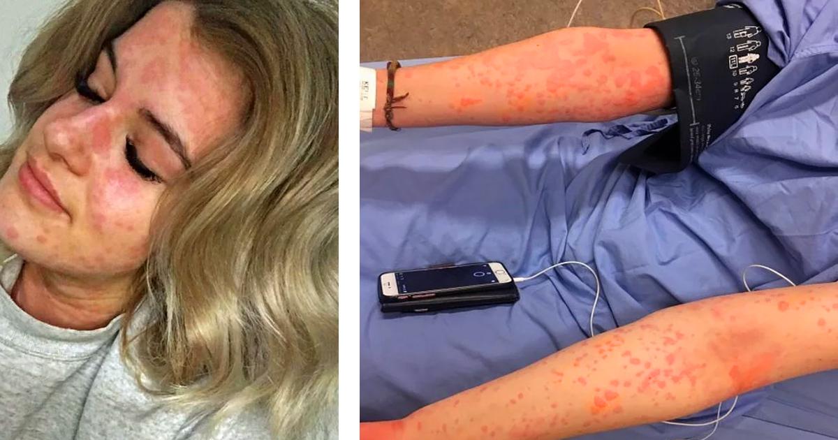 Девушка страдает страшной аллергией на холод, которая может ее убить
