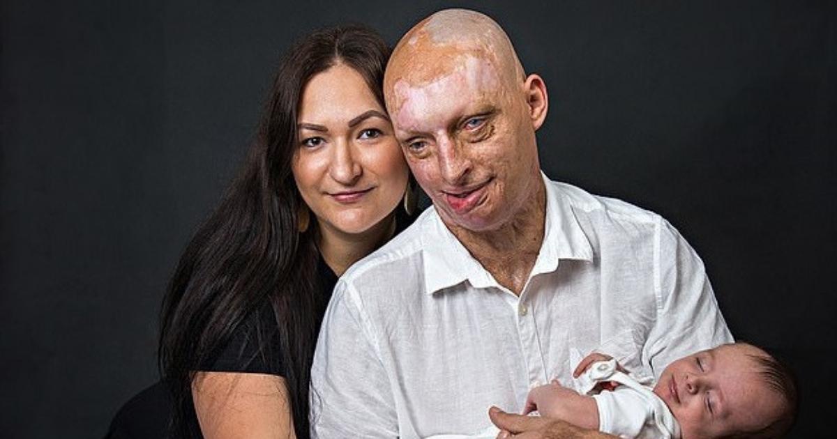 Фото Новая любовь: мужчина, облитый кислотой, женился на своей сиделке
