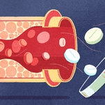 Personal Health: When the Benefits of Statins Outweigh the Risks