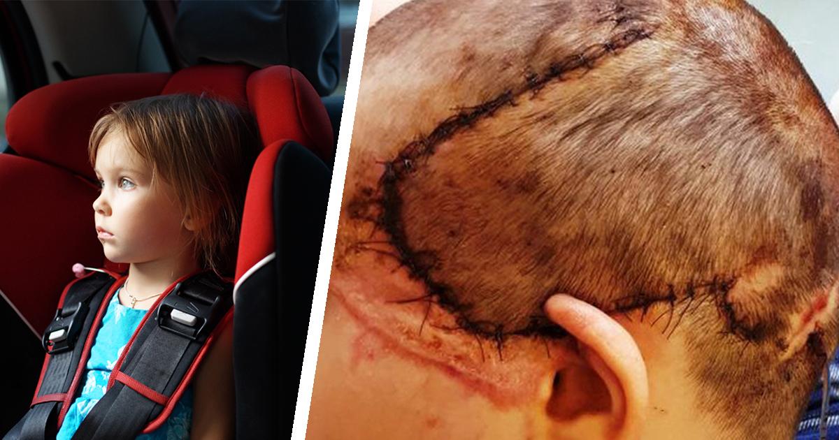Ребенку, получившему страшные ожоги, вырастили на голове новую кожу