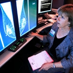 Photo of Mammogram Centers Must Tell Women if They Have Dense Breasts, F.D.A. Proposes