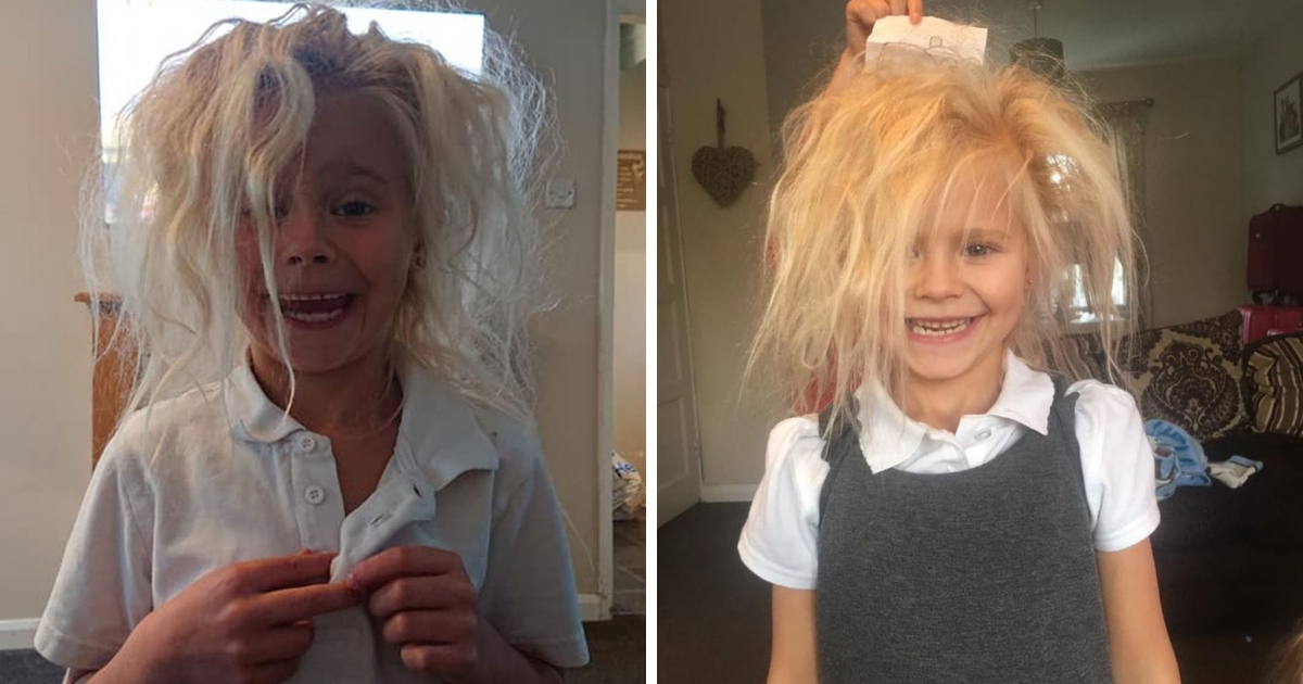 """Фото Гнездо на голове: британка страдает редким синдромом """"нечесаных волос"""""""