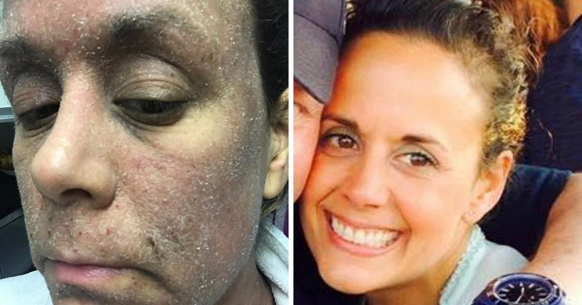 """Фото """"Как зомби"""": у женщины начались проблемы с кожей из-за крема"""