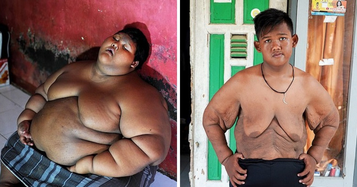 Утратил статус: самый толстый мальчик в мире похудел на 106 килограммов
