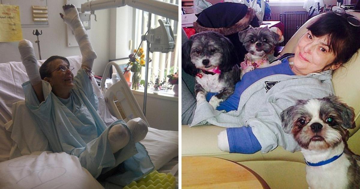 Женщине ампутировали три конечности после укуса любимой собаки