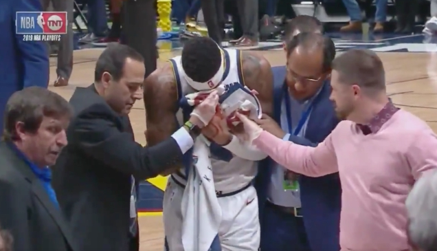 Photo of Torrey Craig's Face Smashed Up And Bloodied By Opponent's Arm And Teammate's Leg [Update]