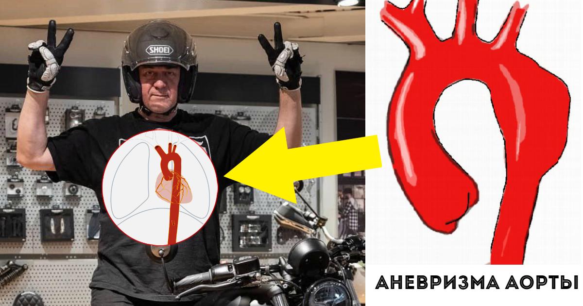 Фото Причина смерти Сергея Доренко. Что такое аневризма и разрыв аорты?