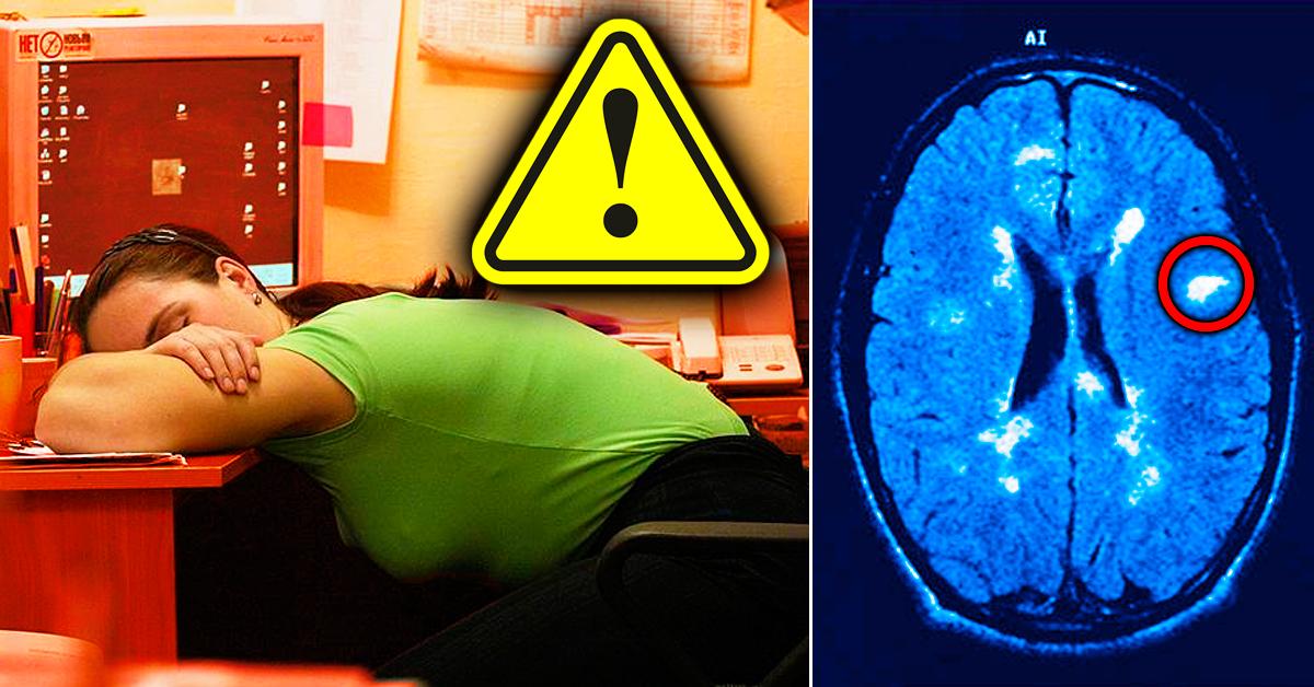 Рассеянный склероз что это за болезнь симптомы и методы лечения