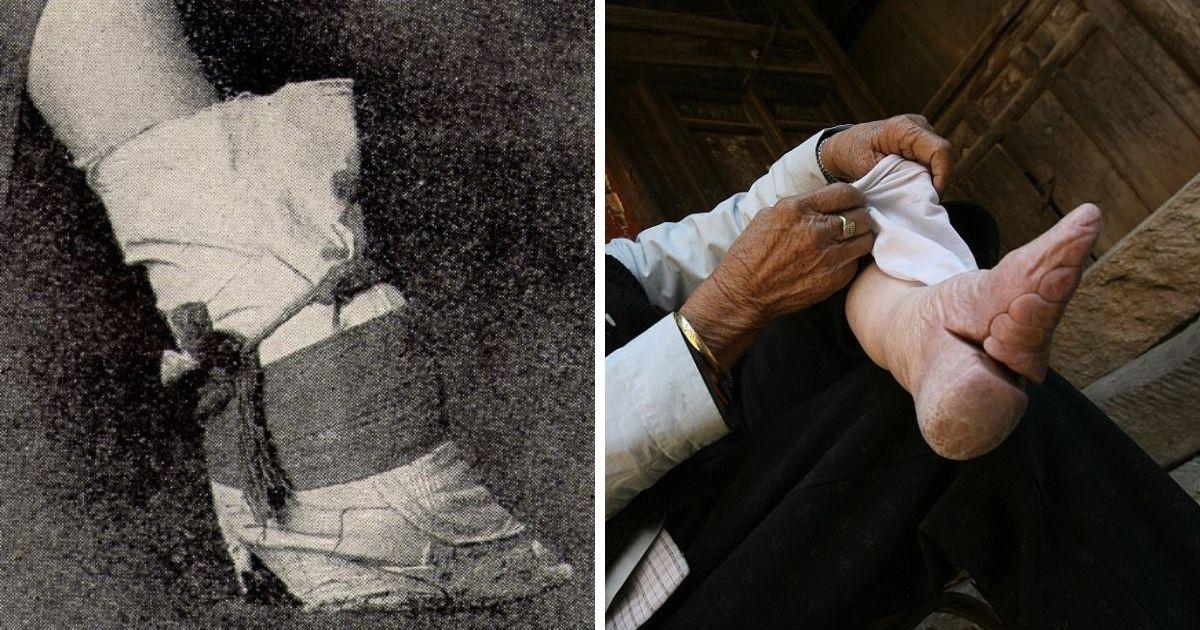 """Фото """"Золотые лотосы"""": как пожилые китаянки страдают от традиций прошлого"""