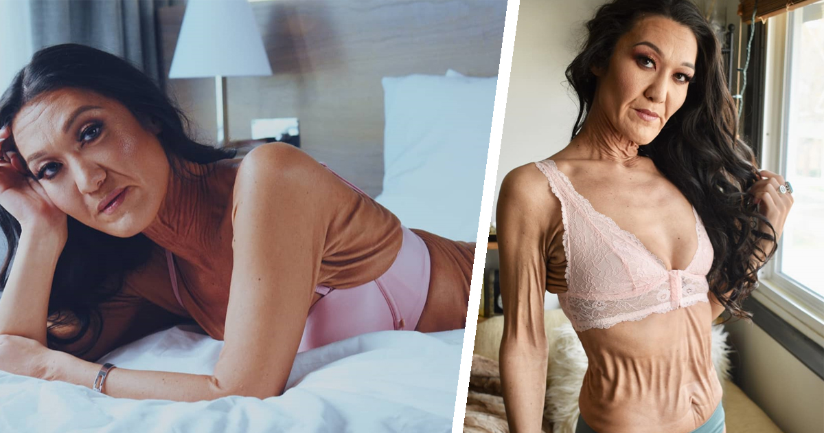 Фото Редкое заболевание кожи превратило 28-летнюю девушку в старуху