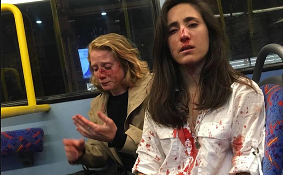 Photo of La policía británica detiene a cinco personas por el ataque homófobo a una pareja de mujeres en Londres